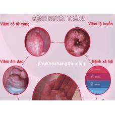 Các biểu hiện bệnh huyết trắng nguyên nhân và cách điều trị tại nhà