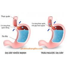 Biểu hiện Trào ngược dạ dày Nguyên nhân và cách điều trị tại nhà