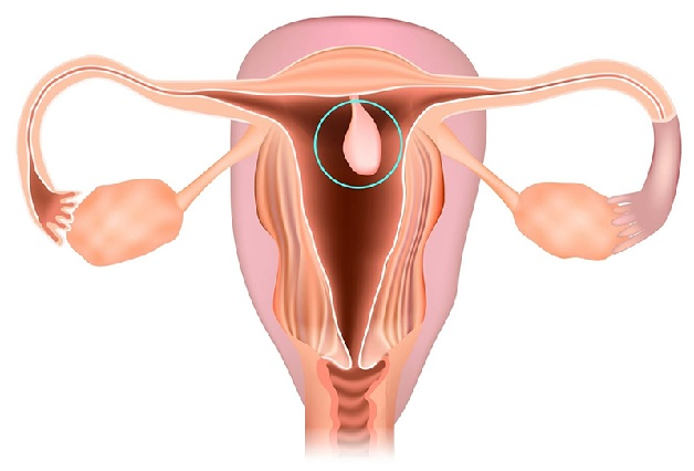 polyp tử cung