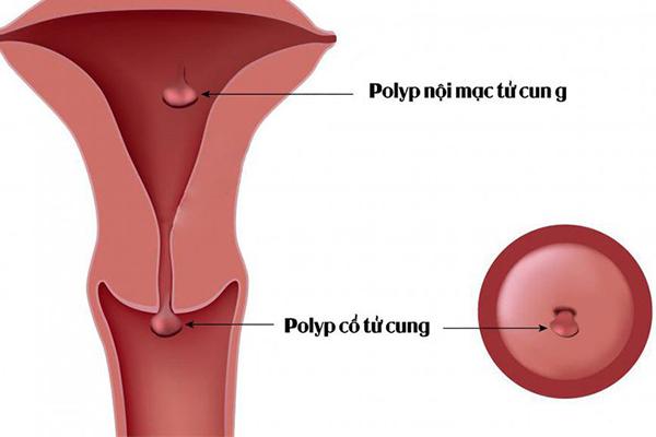 Polyp tử cung khi mang thai